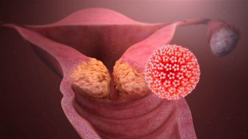 Ung thư cổ tử cung  HPV