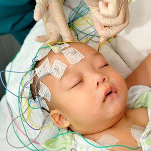 đo điện não cho bé