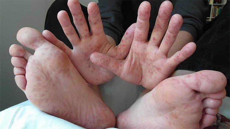 Nổi mẩn đỏ tay chân