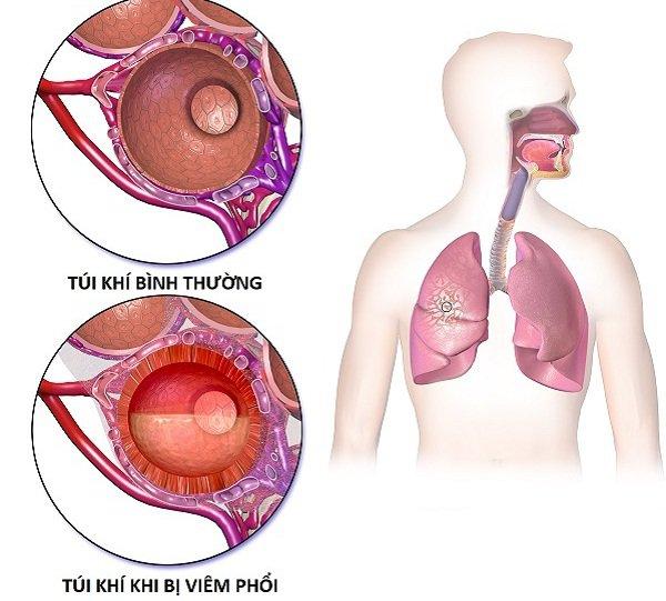 Viêm phổi cấp