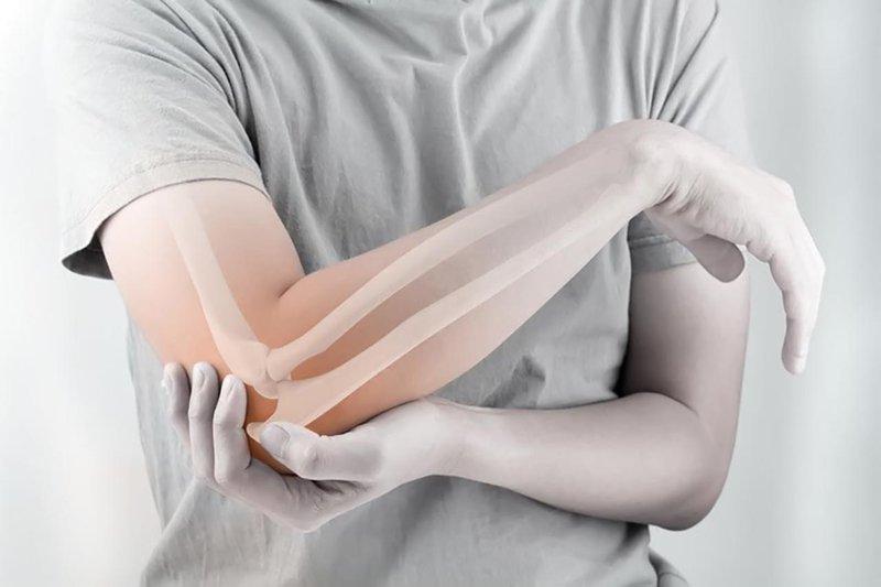 Bị gãy khớp khuỷu tay