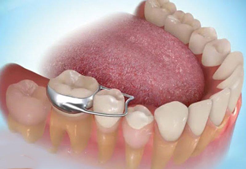 band răng