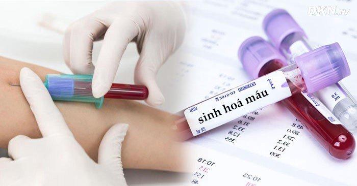 xét nghiệm sinh hóa máu