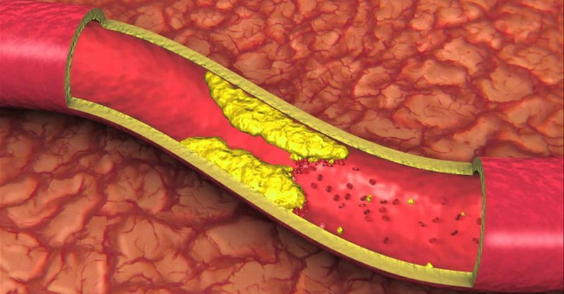 xét nghiệm lipid máu