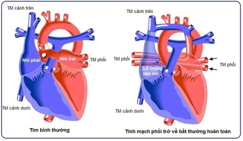 Tĩnh mạch phổi đổ lạc chỗ