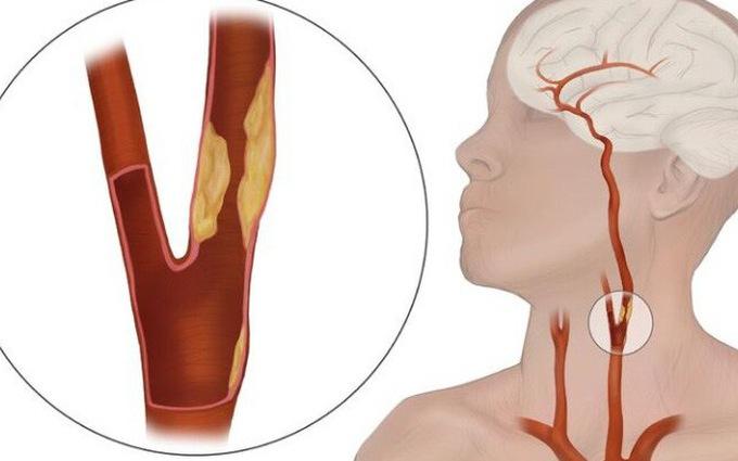 Hẹp động mạch cảnh là nguyên nhân phổ biến gây tai biến mạch máu não