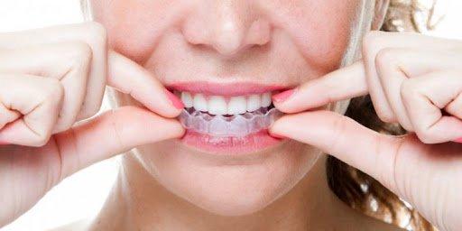 Tẩy trắng răng bằng máng: Những điều cần biết | Vinmec