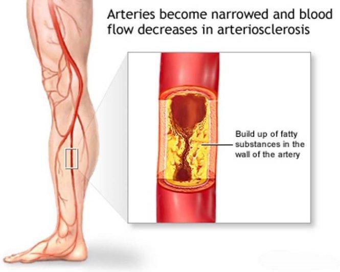 Tắc động mạch chi dưới