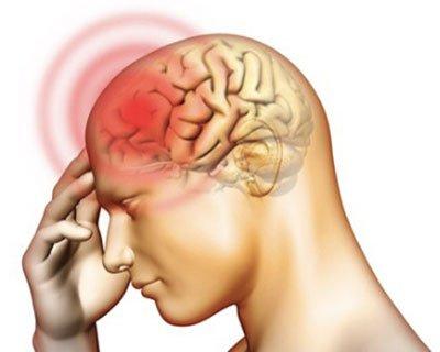 Vi khuẩn gây viêm não mô cầu gây nên những căn bệnh nguy hiểm đến tính mạng của người bệnh
