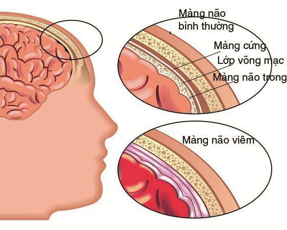 Bệnh viêm màng não do vi khuẩn não mô cầu gây ra