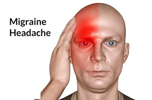 đau nửa đầu