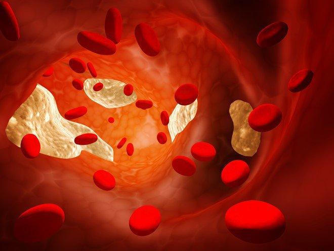 Điều trị tăng cholesterol máu ở người cao tuổi