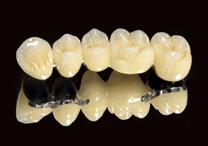 Răng sứ có mấy loại, ưu và nhược điểm | Vinmec