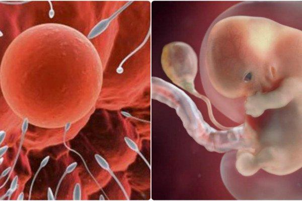 Trứng thụ thai với tinh trùng bất thường về hình dạng