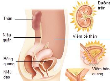 Viêm đường tiểu nhẹ khi mang thai