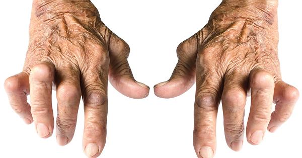Viêm khớp dạng thấp là căn bệnh rất phổ biến hiện nay