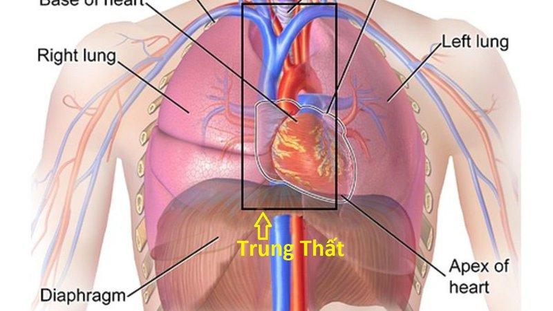 Mổ nội soi lồng ngực u trung thất