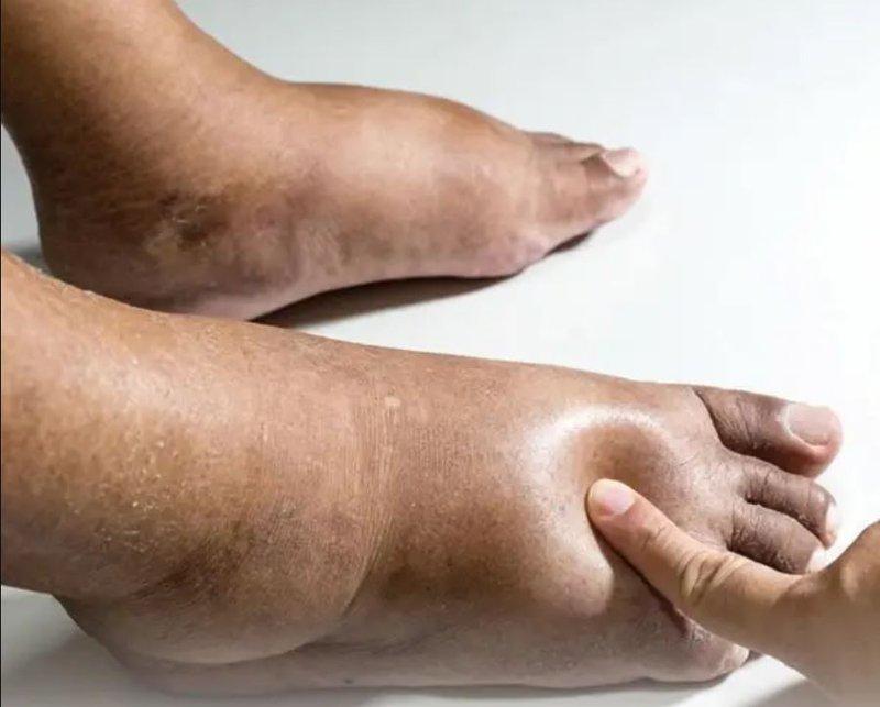 Chân bị phù người già phù chân