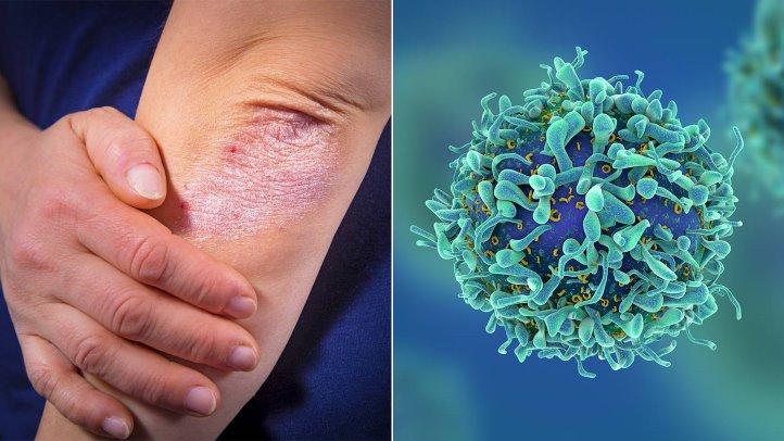 Mối quan hệ giữa bệnh vẩy nến và bệnh tim, ung thư
