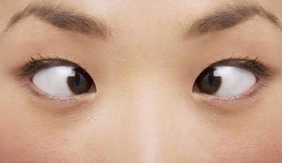 Mắt lác