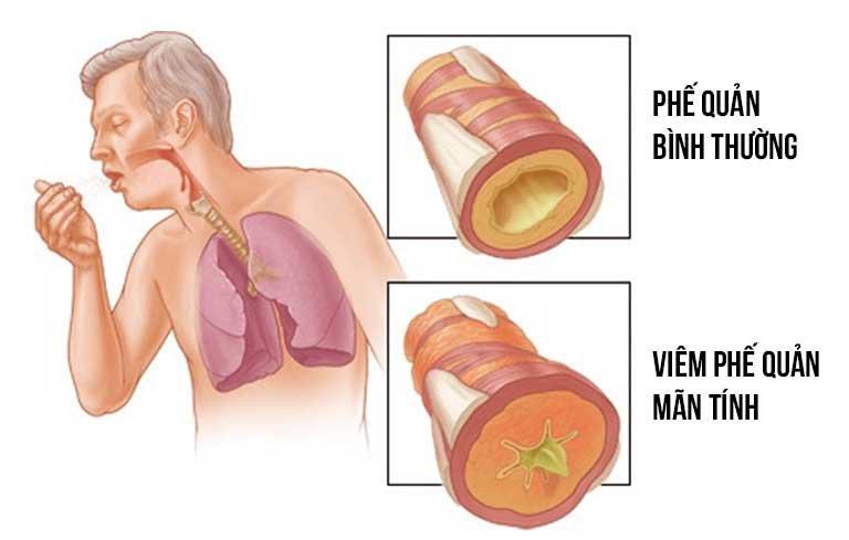 Hướng dẫn trực quan về viêm phế quản