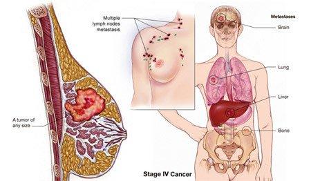 ung thư vú giai đoạn cuối