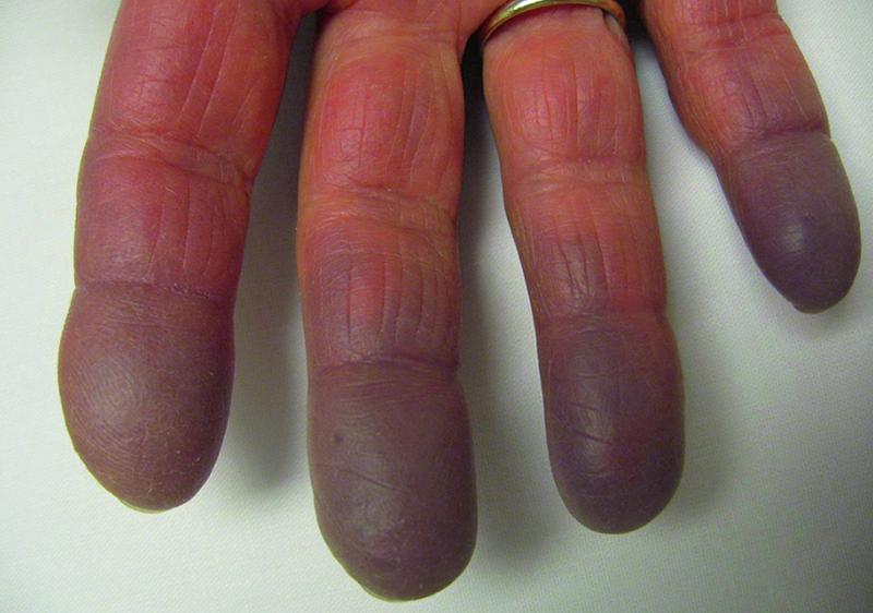 Bệnh mô liên kết hỗn hợp
