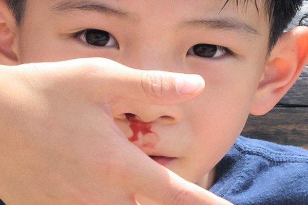 Trẻ chảy máu cam khi dùng thuốc xịt hen