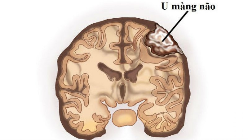 Điều trị u màng não