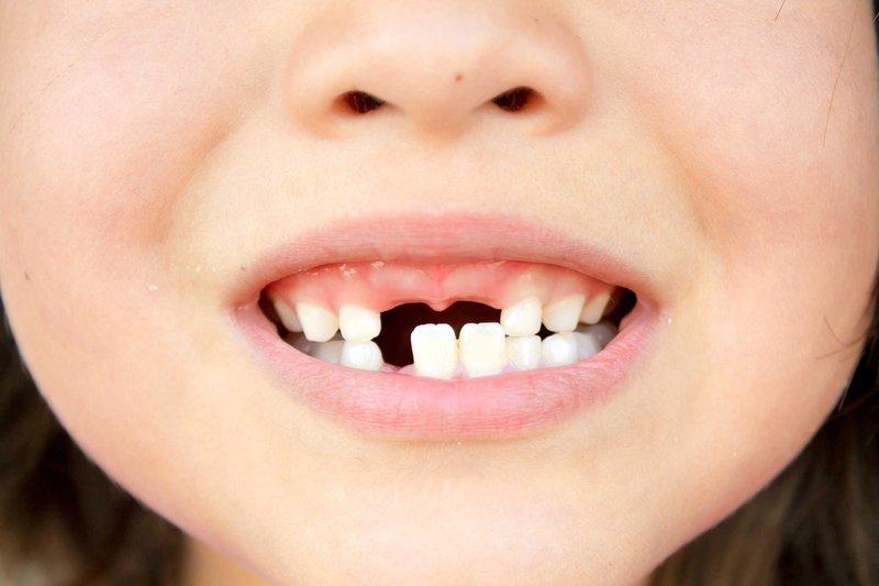Trẻ rụng răng cửa