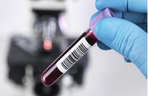 Xét nghiệm Anti-HBc IgM