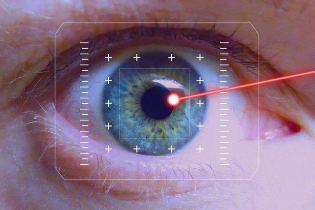 Laser cận thị\