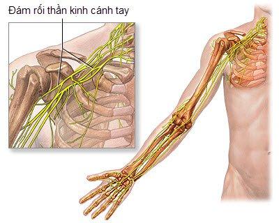 đám rối thần kinh cánh tay
