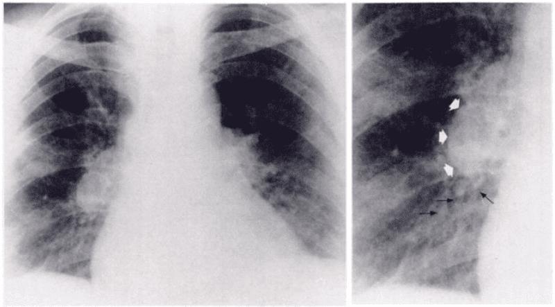 Dấu hiệu thuyên tắc phổi trên X quang ngực