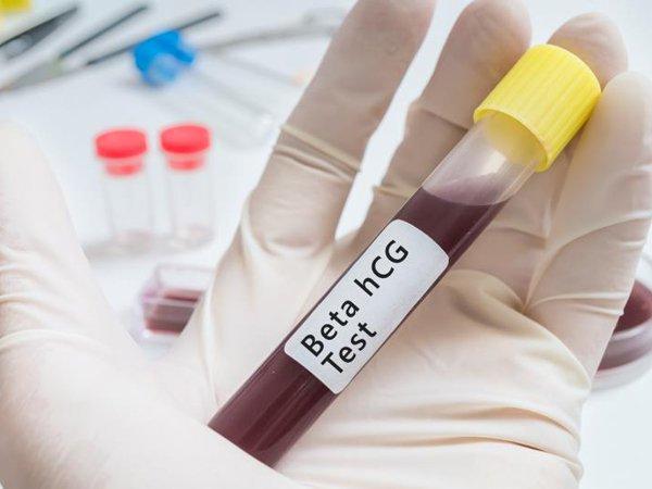 Xét nghiệm beta HCG