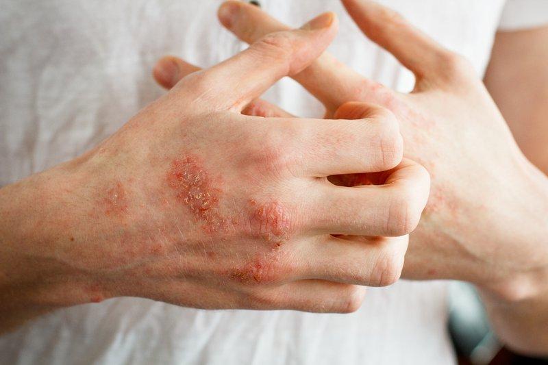 Bệnh viêm da Pellagra