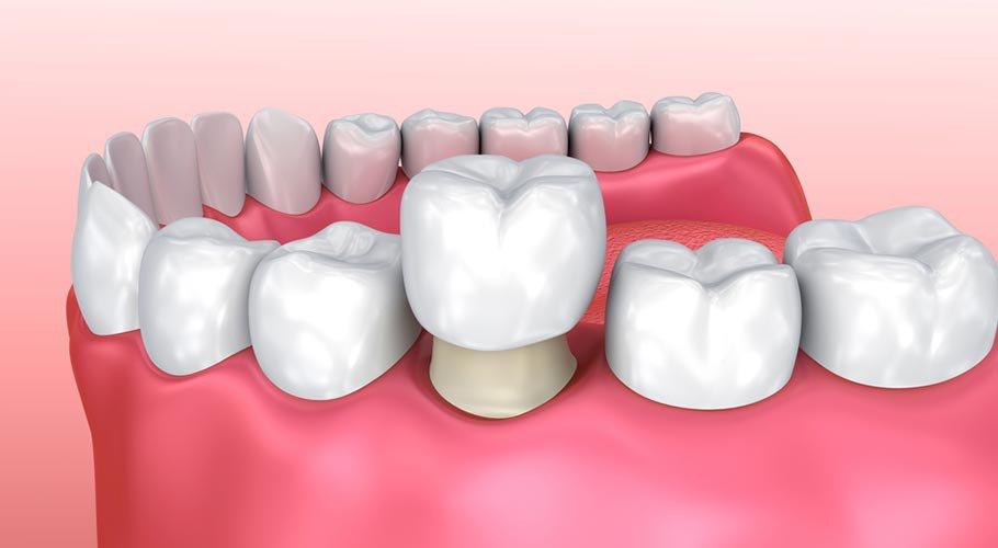 chụp răng sứ