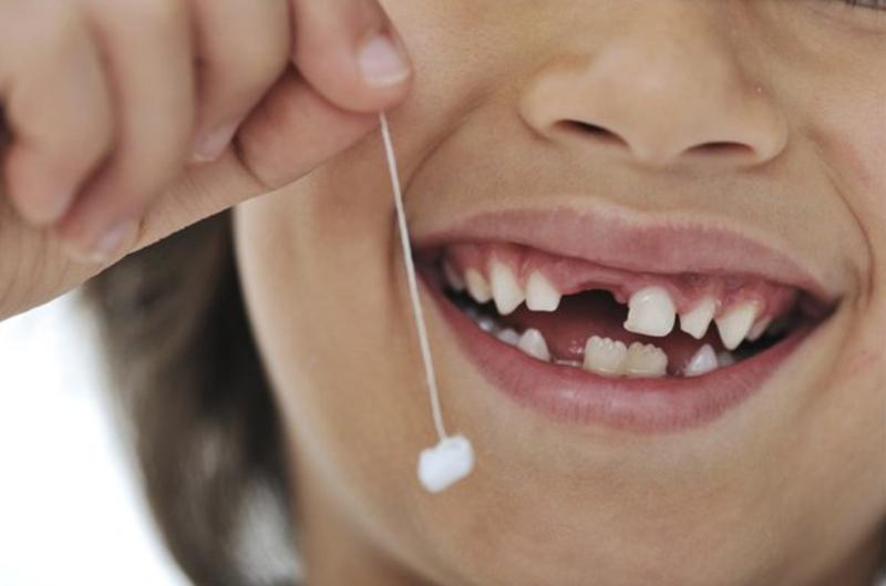 thay răng của trẻ
