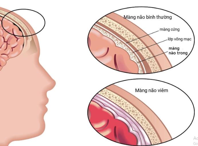 hội chứng màng não