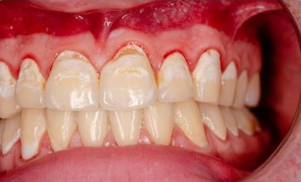 Phải làm gì khi chảy máu chân răng?   Vinmec