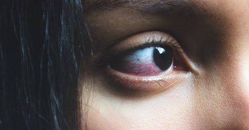 thị lực bất thường