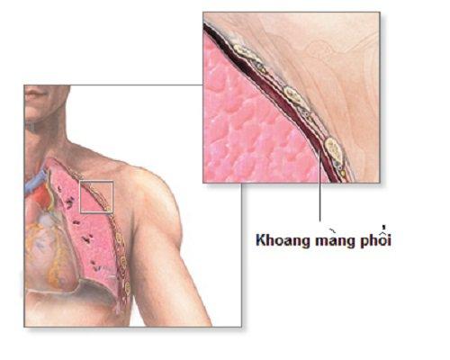 khoang màng phổi
