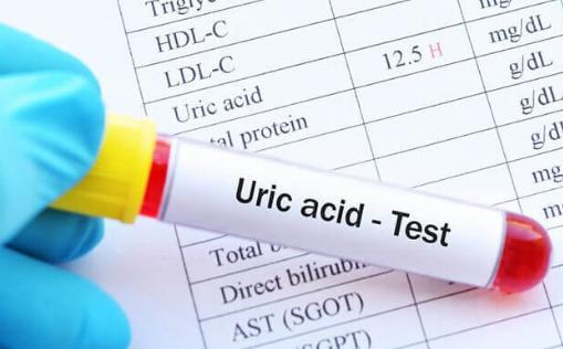 Xét nghiệm sinh hóa máu acid uric