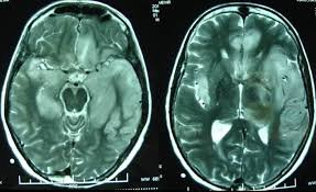 Chụp CT não