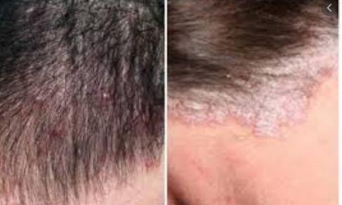 vẩy nến da đầu