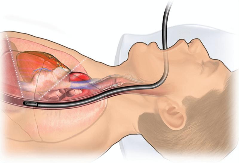siêu âm tim qua đường thực quản