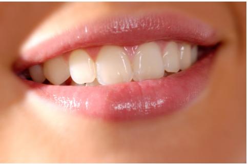 Nước có gas có ảnh hưởng đến sức khỏe răng miệng không?