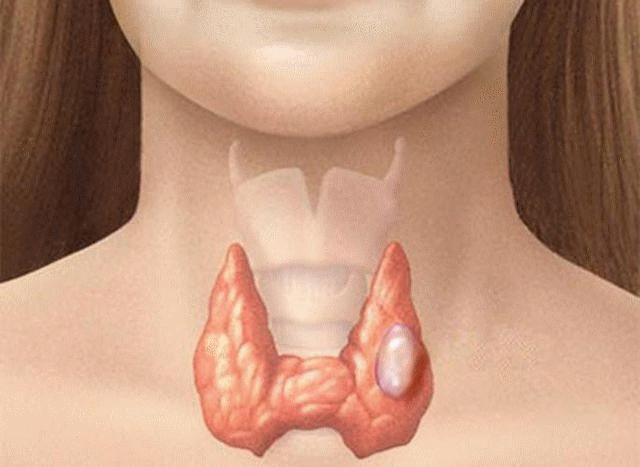 Ung thư tuyến giáp thể tủy