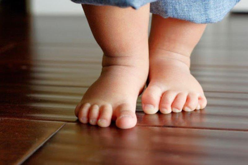 Thừa cân ở trẻ