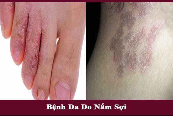 Bệnh da do nấm sợi